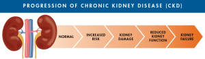 Progression of Kidney Disease