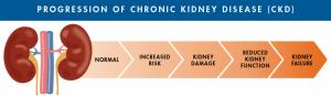 Progression of Kidney Disease